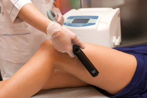 laser hair removal prices